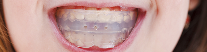 Mouthguards and nightguards Regency Dental Omaha