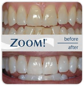 Zoom Whitening Regency Dental, Omaha dentist