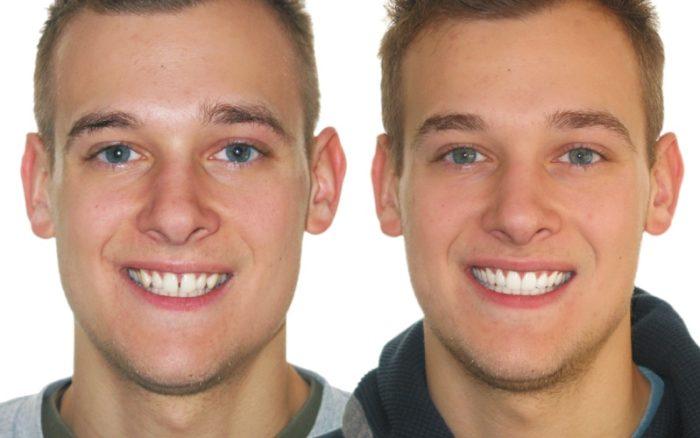 Dentist Omaha, Regency Dental