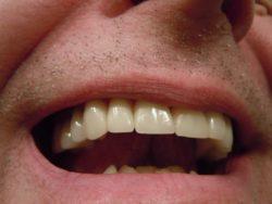 Dental Crowns FAQ's