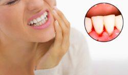 Gum Disease Treatment & Causes Omaha Dentist