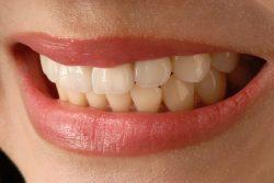 Grinding Your Teeth